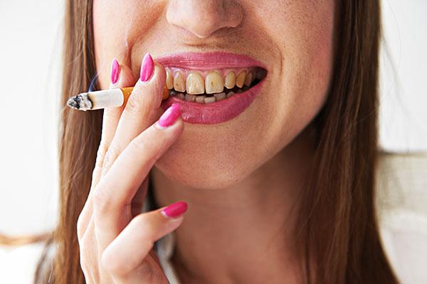 Dohányzó nő sárga fogakkal